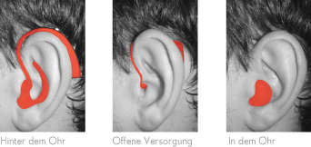 Hörgerätebauformen, Hörgerätetypen, Hörsystembauformen, Hörsystemtypen, Hinter dem Ohr, In dem Ohr, HdO, IdO, Hörbar, Hörbar Wuppertal, Alexander Tetzner, Hörakustik, Hörsysteme, Hörgeräte